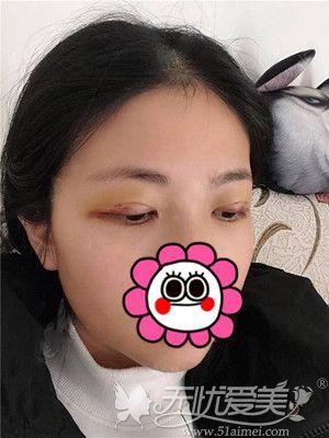 天生大小眼做双眼皮手术后7天