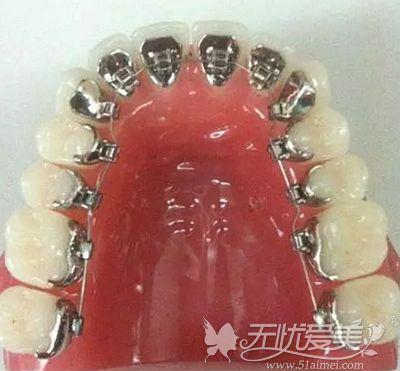 舌侧牙齿矫正的原理和优势