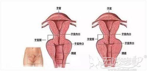 阴道紧缩手术原理