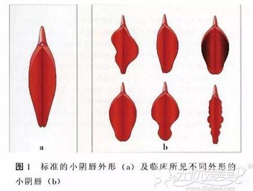 阴唇的不同形状