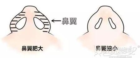 鼻翼缩小手术的效果
