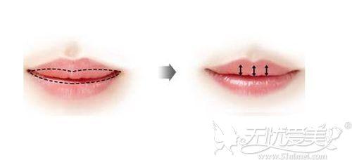 厚唇改薄对比效果