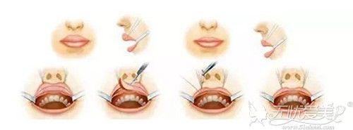 厚唇改薄手术过程