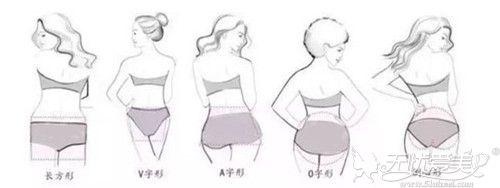 自体脂肪丰臀可以改善的臀型