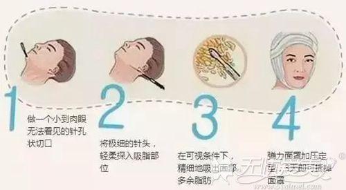 脂肪型发腮可以依靠吸脂手术改善