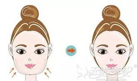 埋线提升可改善衰老型发腮