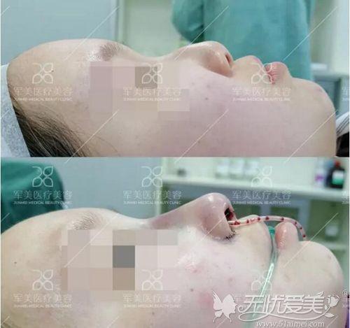 硅胶假体+自体耳软骨鼻综合案例