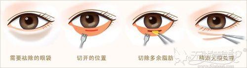 内切眼袋过程