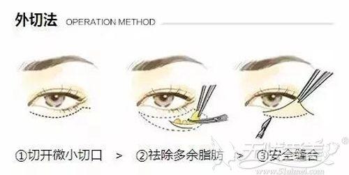 外切眼袋过程