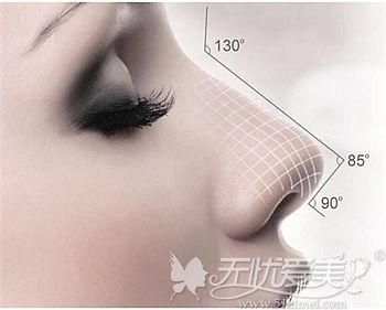 隆鼻材料曼特波和舒铂