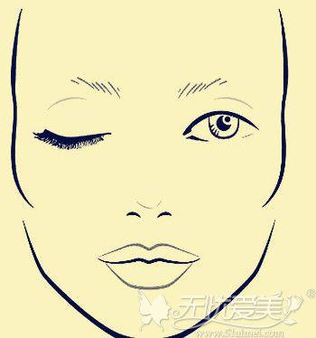 眉型残缺或者是无眉可以做眉毛种植