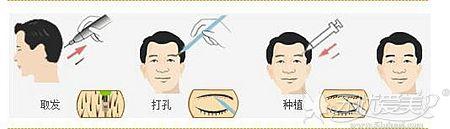 解析植眉手术的原理