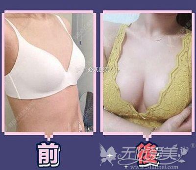 韩国必妩假体隆胸案例