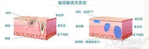 玻尿酸注射除皱的效果