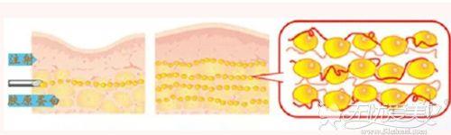 胶原蛋白除皱的过程