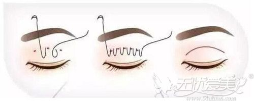 埋线双眼皮过程
