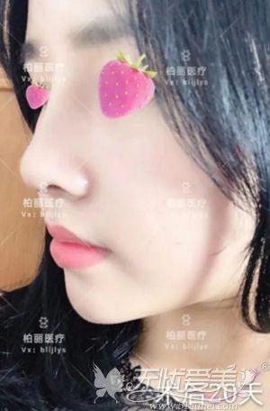 在北京做肋骨鼻综合手术后20天