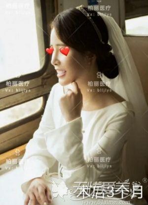 在北京做肋骨鼻综合手术后3个月