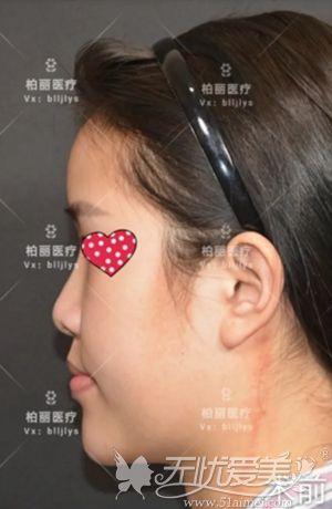 在北京做肋骨鼻综合手术前照片