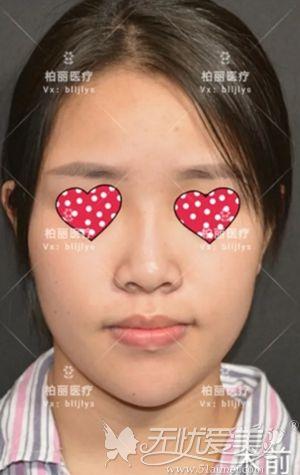 在北京做肋骨鼻综合手术前