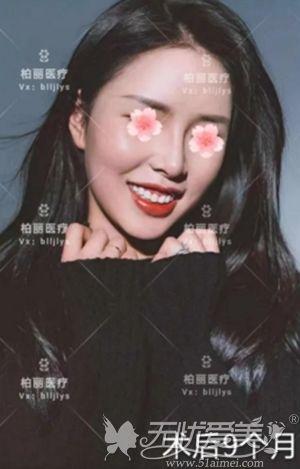在北京做肋骨鼻综合手术后9个月