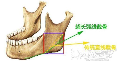 下颌角和长曲线的区别