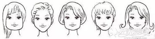 需要做整形的下颌角类型