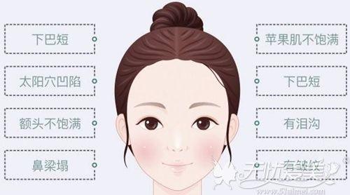 逸美一加一玻尿酸可以改善面部问题