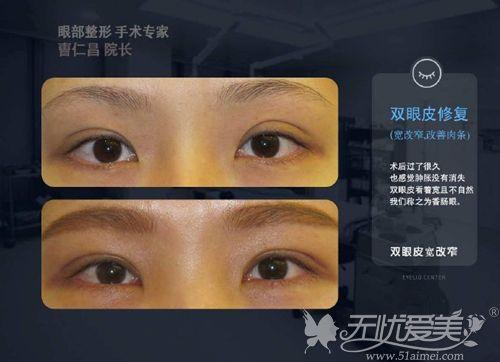 曹仁昌院长双眼皮修复案例