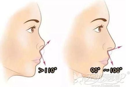 隆鼻后鼻子挛缩修复效果