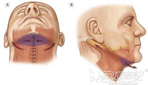 颈阔肌成形术原理