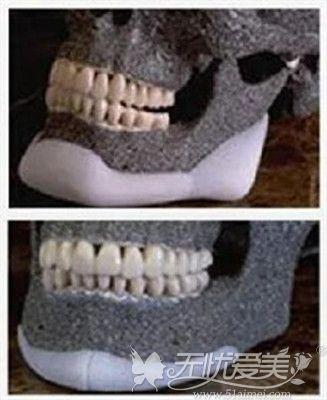 medpor曼特波人工骨修复下颌角案例