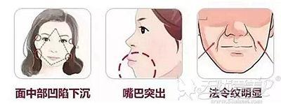 鼻基底凹陷对我们的影响