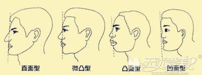 鼻基底凹陷的轻重程度