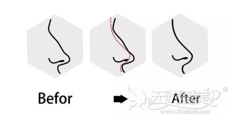 隆鼻后为什么会鼻头挛缩
