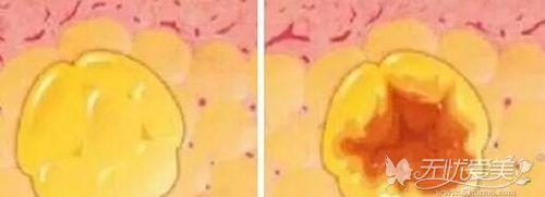脂肪移植术后出现钙化
