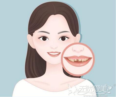 门牙缺失种植方法