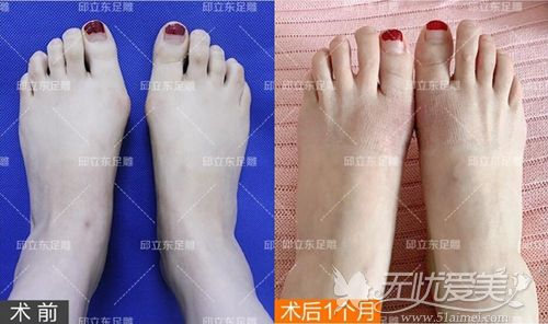 大脚骨手术前后对比案例