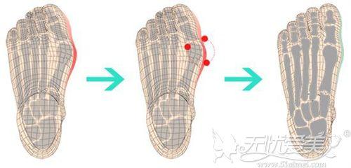 微创大脚骨手术过程图