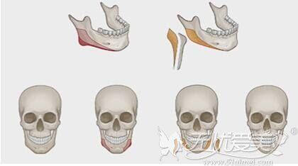 下颌角肥大整形原理