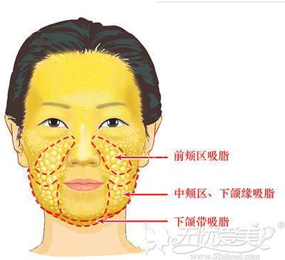 面部复合消融能做的部位