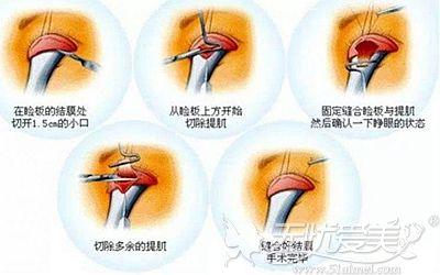 上睑下垂矫正手术的原理