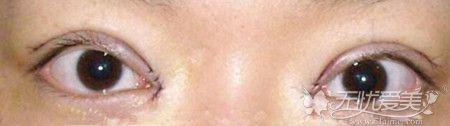 双眼皮提肌后瞪眼的恢复时间