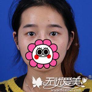 在北京做双眼皮手术前