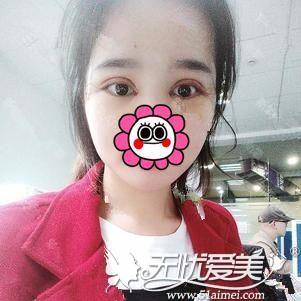 在北京做双眼皮手术后5天
