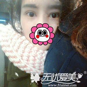 在北京做双眼皮手术后40天