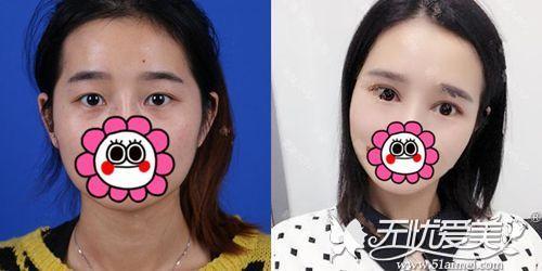 在北京做双眼皮手术前后对比