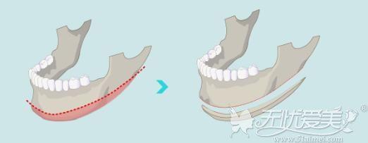 下颌角截骨手术