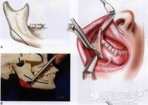 口内切口引起的增生问题