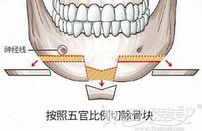 T型截骨改善下巴需要钛钉固定